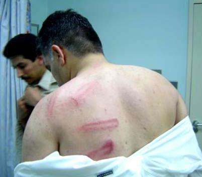 Cette photo, disponible sur Wikipedia anglais, présente les brutalités policières que Nabil Rajab aurait subies, déjà lors d'une manifestation le 15 juillet 2005.